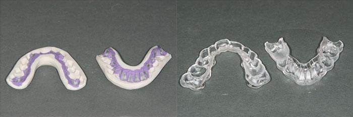 Ortodoncia lingual Incognito, la ortodoncia invisible 100% personalizada 7