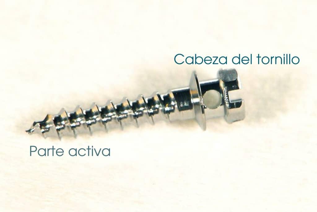 Los microtornillos en ortodoncia: ¿Qué son exactamente? 1