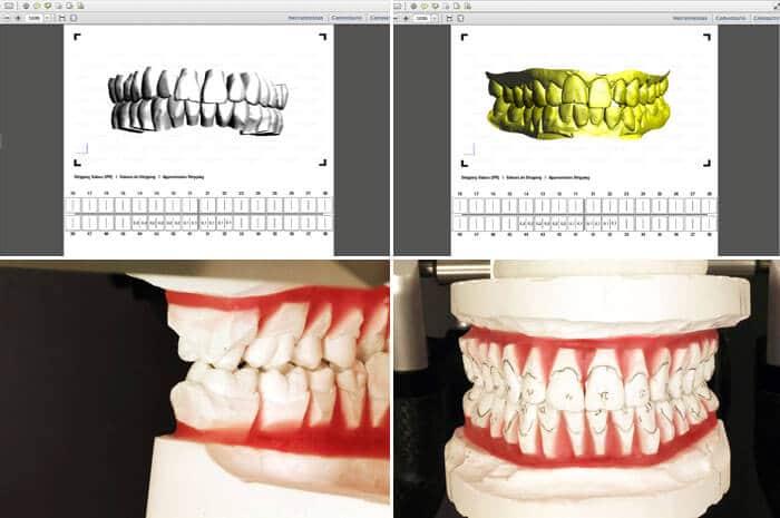 Ortodoncia lingual Incognito, la ortodoncia invisible 100% personalizada 5
