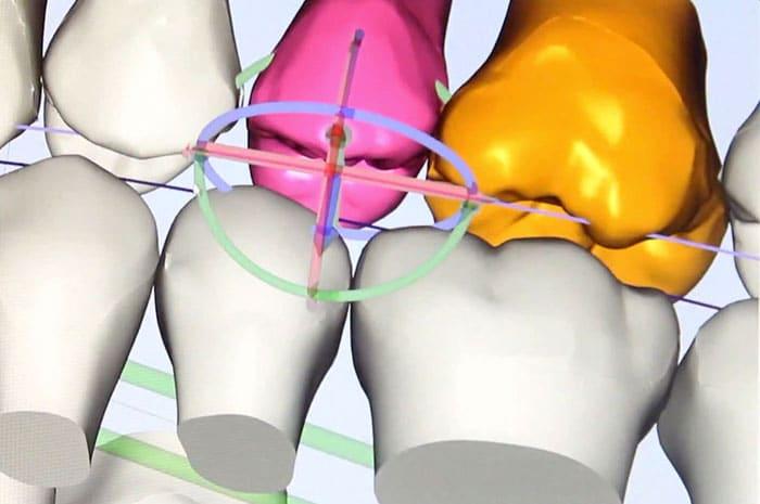 Ortodoncia lingual Incognito, la ortodoncia invisible 100% personalizada 4