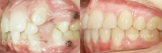 Los microtornillos en ortodoncia: ¿Qué son exactamente? 3