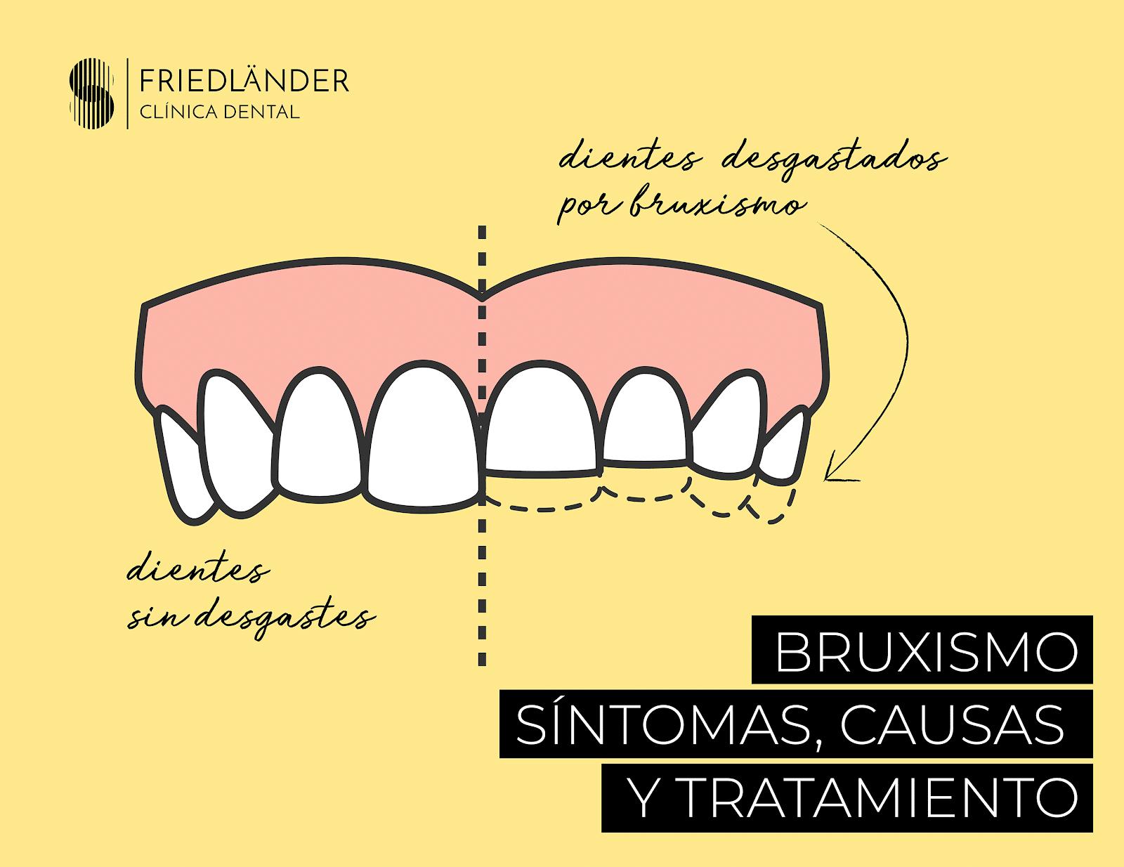 Bruxismo: Síntomas, causas y tratamiento 1