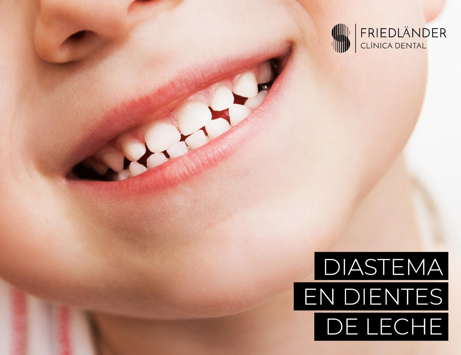 Diastema: La moda de los dientes separados. 1