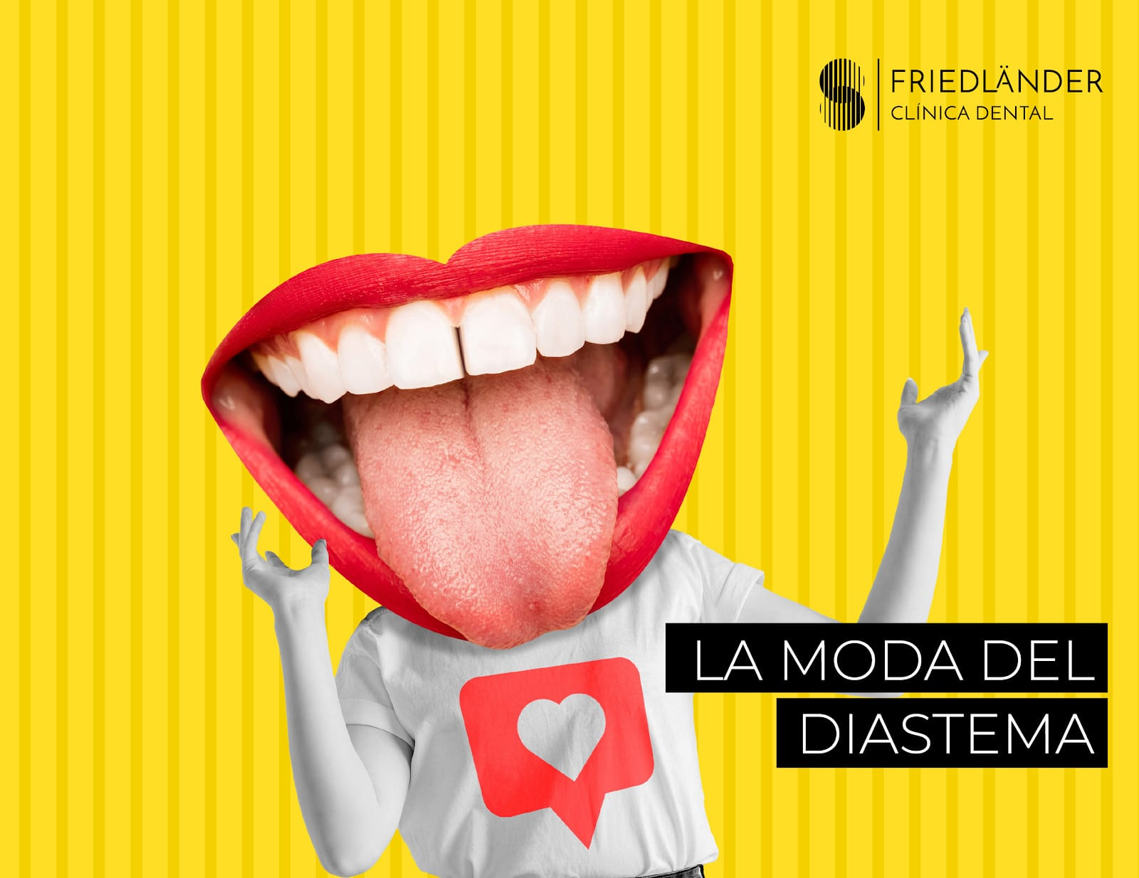 Diastema: La moda de los dientes separados. 3
