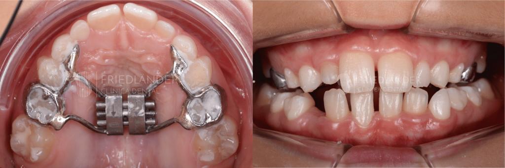Respirar por la boca: Las causas, consecuencias y tratamientos en la edad infantil. 4