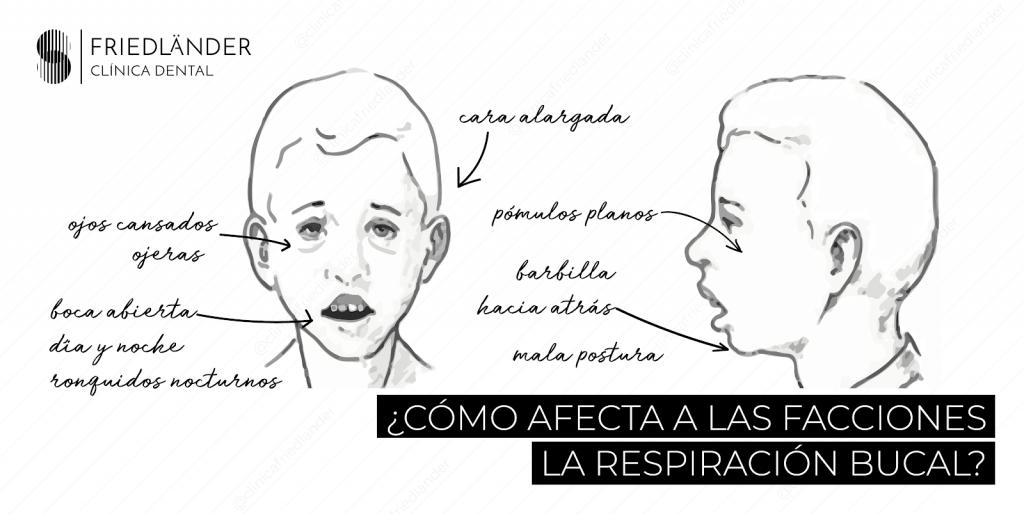 Respirar por la boca: Las causas, consecuencias y tratamientos en la edad infantil. 2