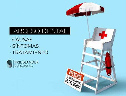 Absceso dental: causas, síntomas y tratamiento