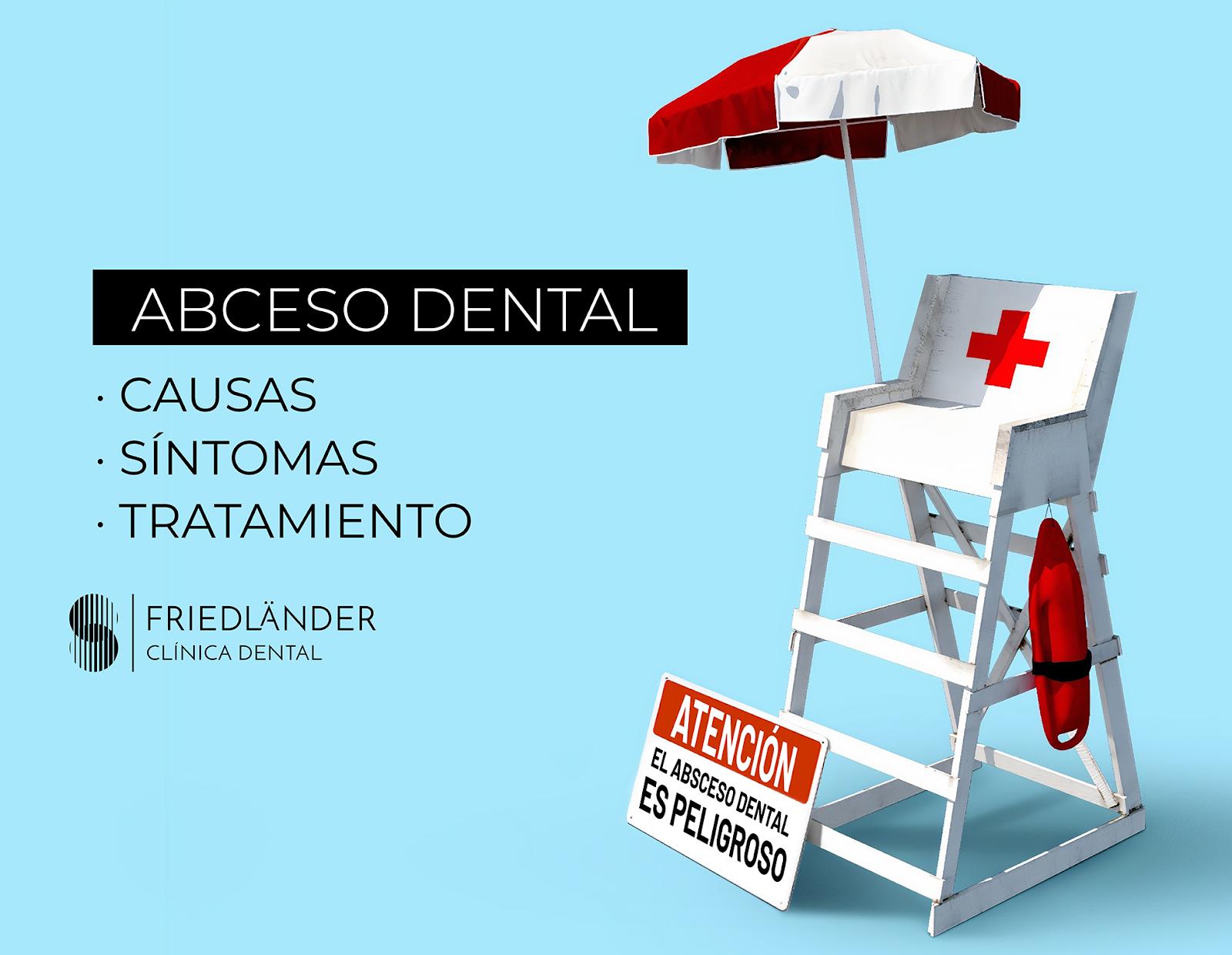 Absceso dental: causas, síntomas y tratamiento 1