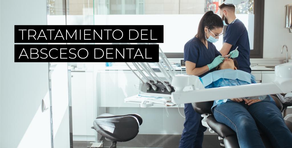 Absceso dental: causas, síntomas y tratamiento 2