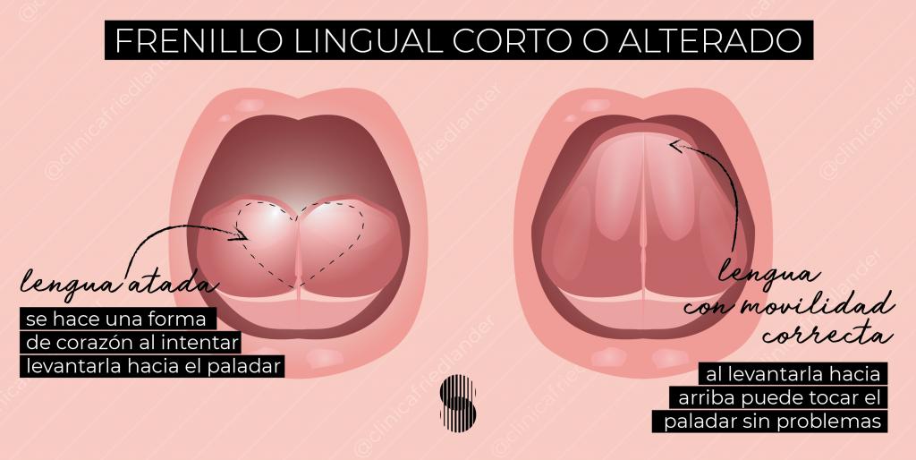 frenillo lingual alterado clínica friedlander