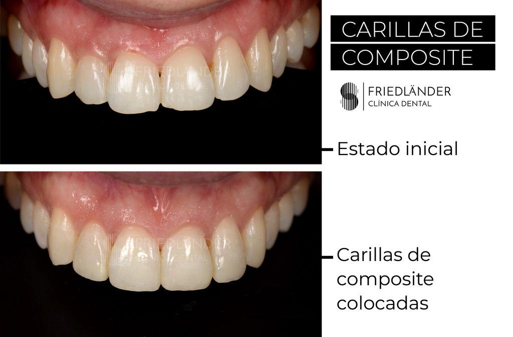 carillas dentales de composite antes y despues