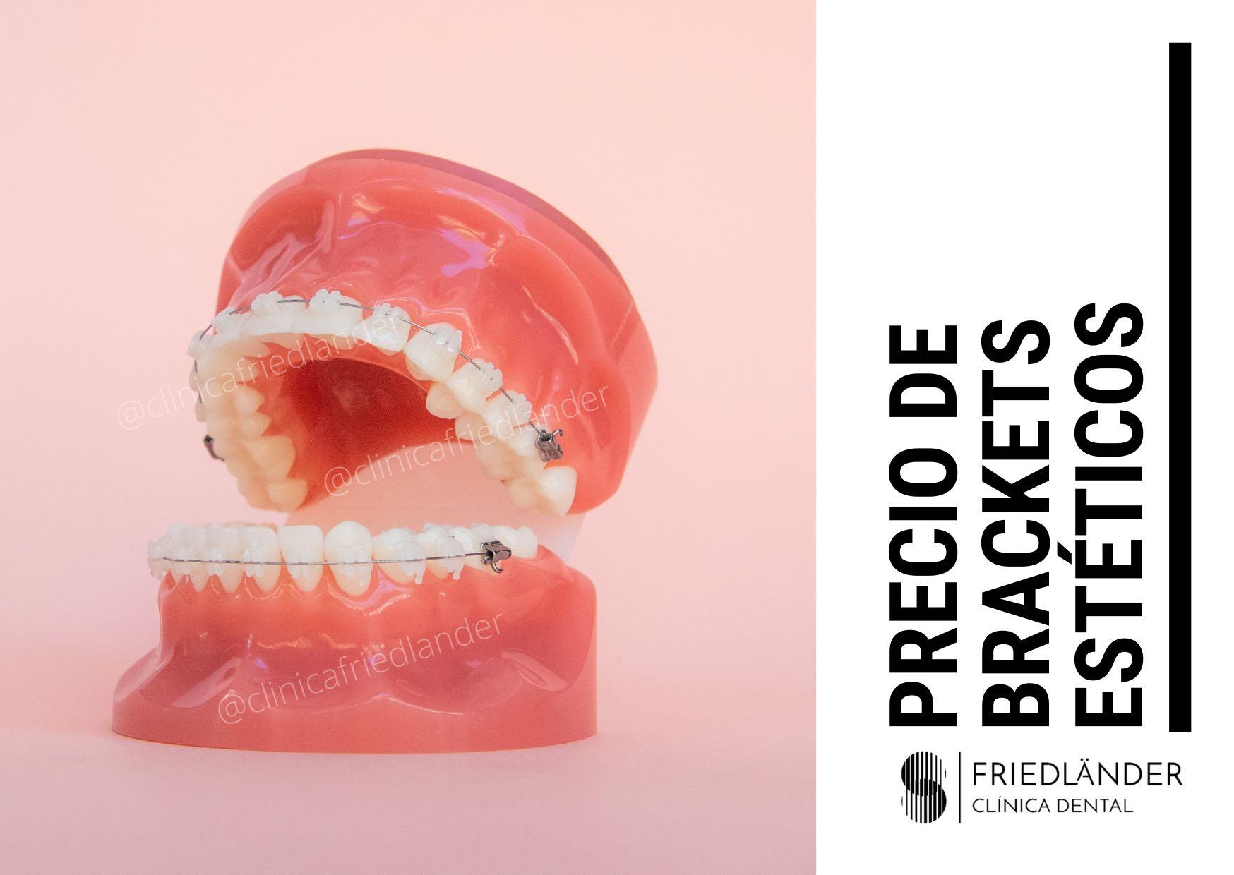 precio brackets esteticos
