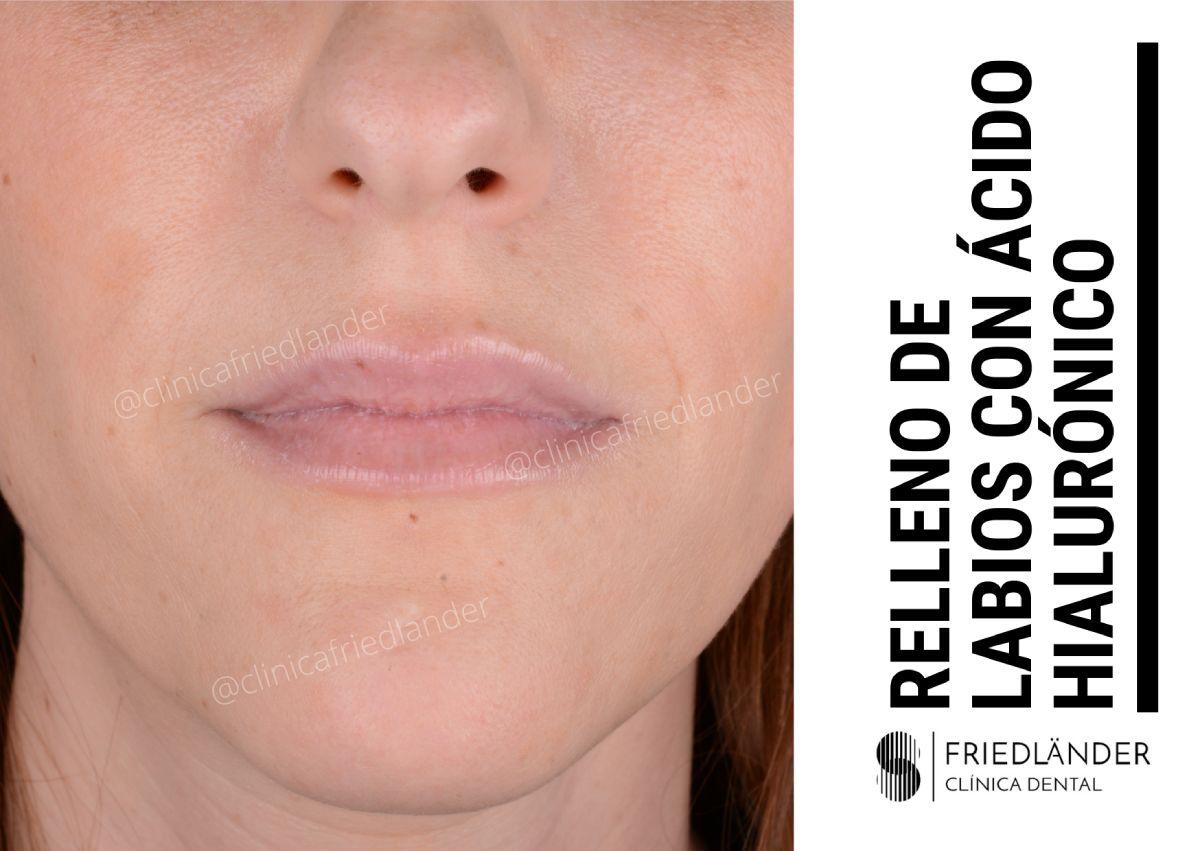relleno de ácido hialurónico para labios